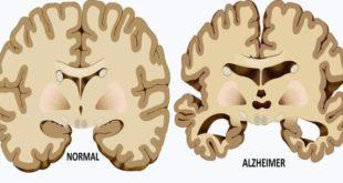 alzheimer-causes-FI-759x420