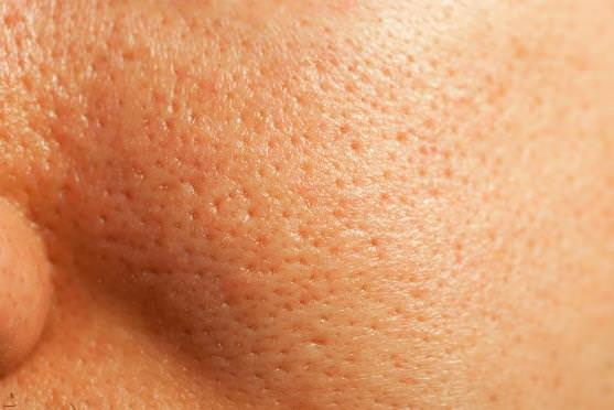 Home-Remedies-to-Get-Rid-of-Clogged-Pores1