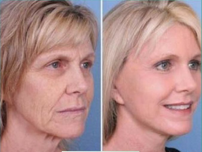 LOSE-15-YEARS-FROM-YOUR-FACE-IN-JUST-10-MINUTES-A-DAY