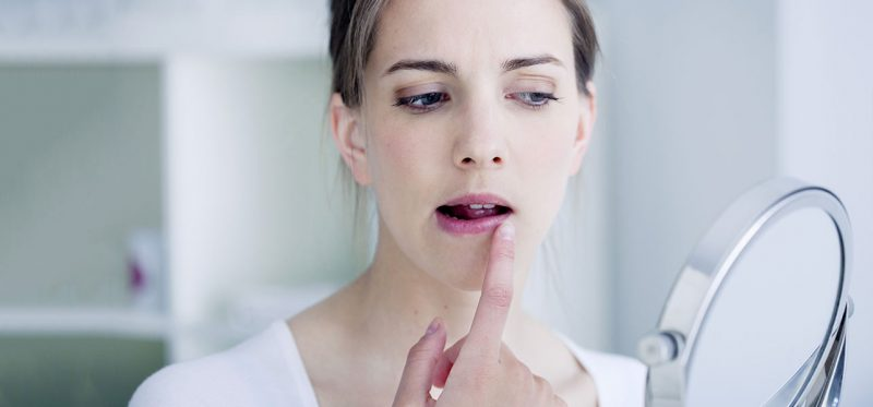 10-Simple-Home-Remedies-To-Get-Rid-Of-Chapped-Lips