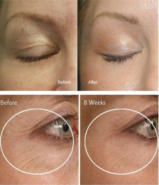 wrinkles 7