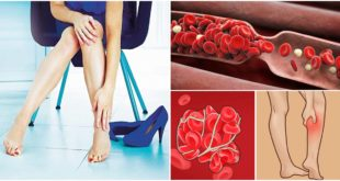 ห้ามมองข้าม!! 8 สัญญาณอันตราย ที่เกิดขึ้นได้จากอาการเส้นเลือดขอด!!